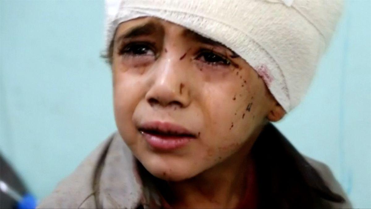 Znásilňování a dětští vojáci. Zpráva OSN popisuje boje v Jemenu a koaliční zločiny proti lidskosti
