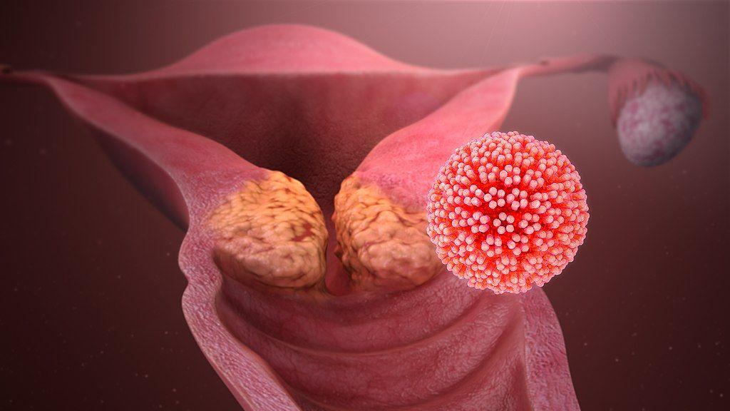 hpv virus rakovina)