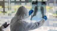 Imladí mohou mít postcovid a zemřít. Ochrání je očkování, říkálékař