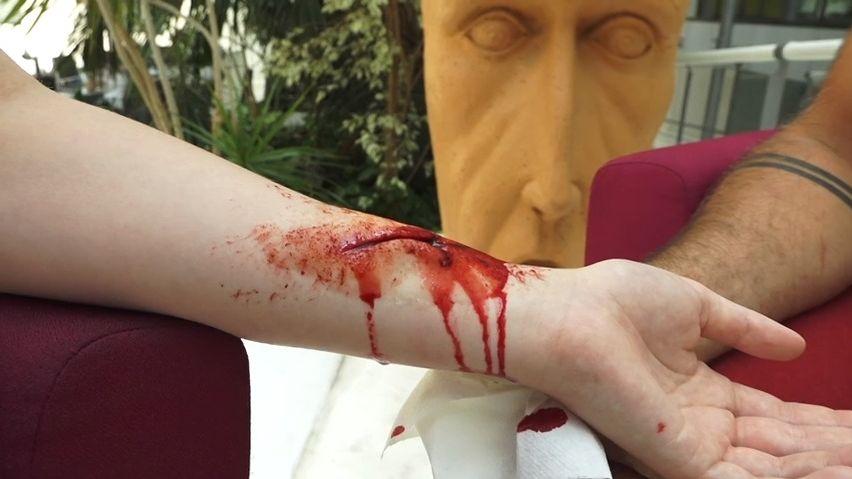 Tržná rána zmouky tak reálná, že žena musela do nemocnice. Trénink zdravotníků popisuje maskér Červeného kříže