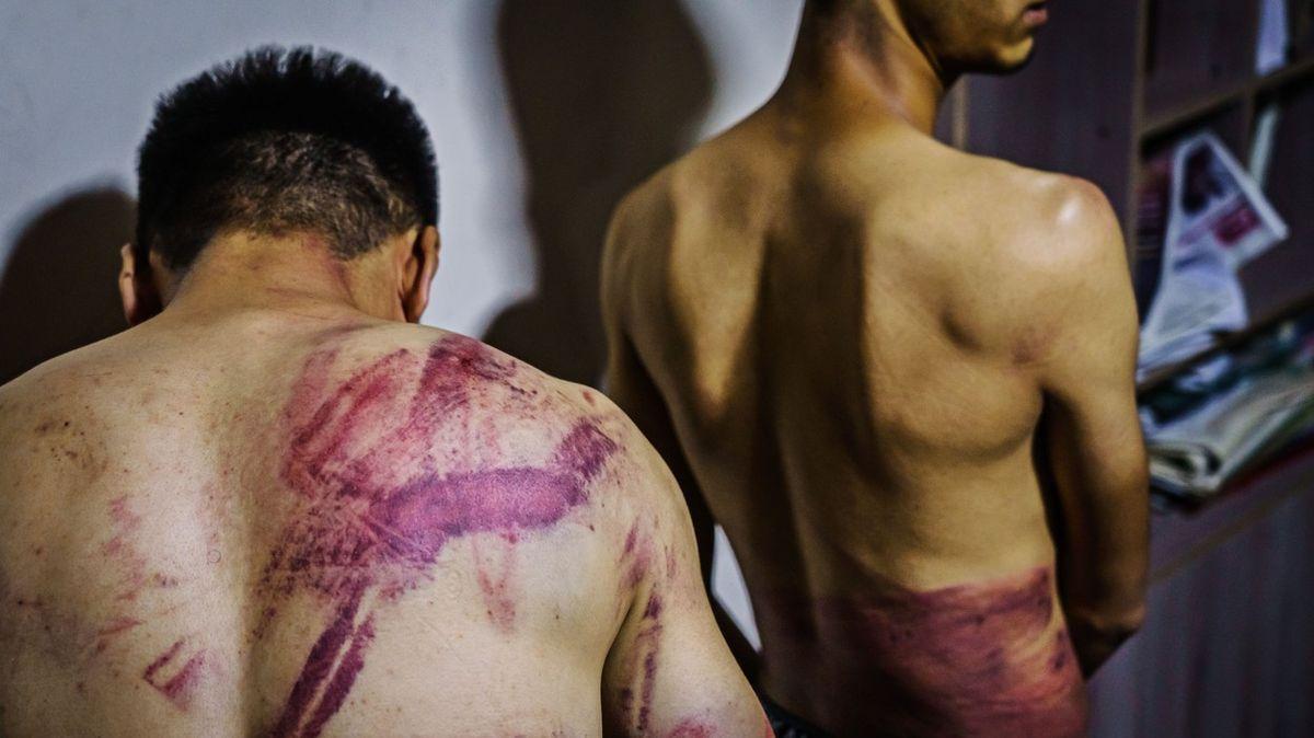 Obušky, biče, elektrické kabely: Jak Tálibánci zbili novináře