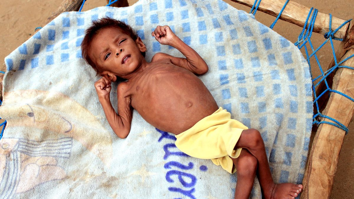 Jemenu hrozí hladomor