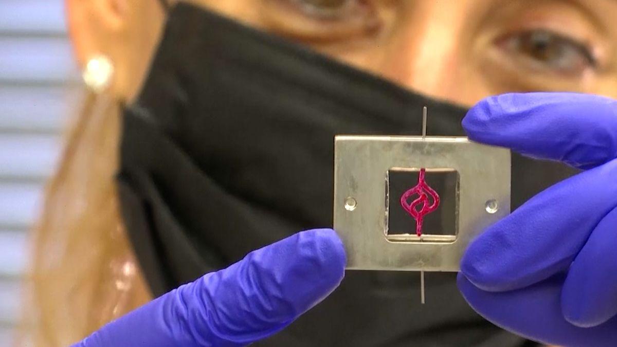 Izraelci vyrábí živé 3D nádory mozku. Urychlí prý léčbu ivývoj nových léků
