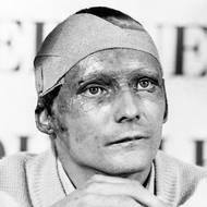 čtk: Niki Lauda / Závodil a procházel dalšími zákroky, takto vypadal po kožní autotransplantaci (přenos kožních štěpů). Snímek z 5. října 1976.