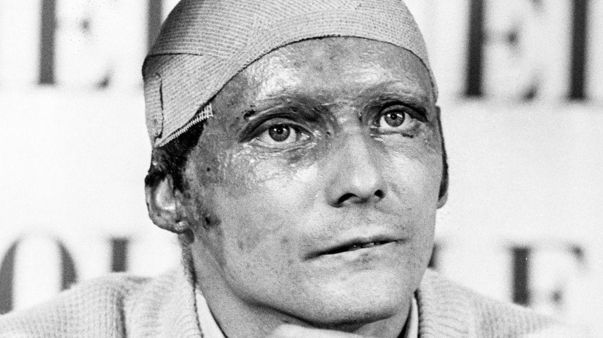 Zpod helmy mu tekla krev, bolest musela být strašlivá. Lauda ukázal, co je odvaha